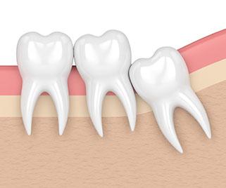 Removing-Wisdom-Teeth