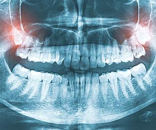 Wisdom-Teeth-carnegie