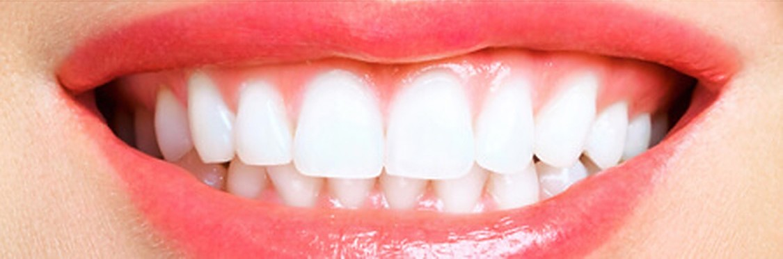 teeth-whitening after